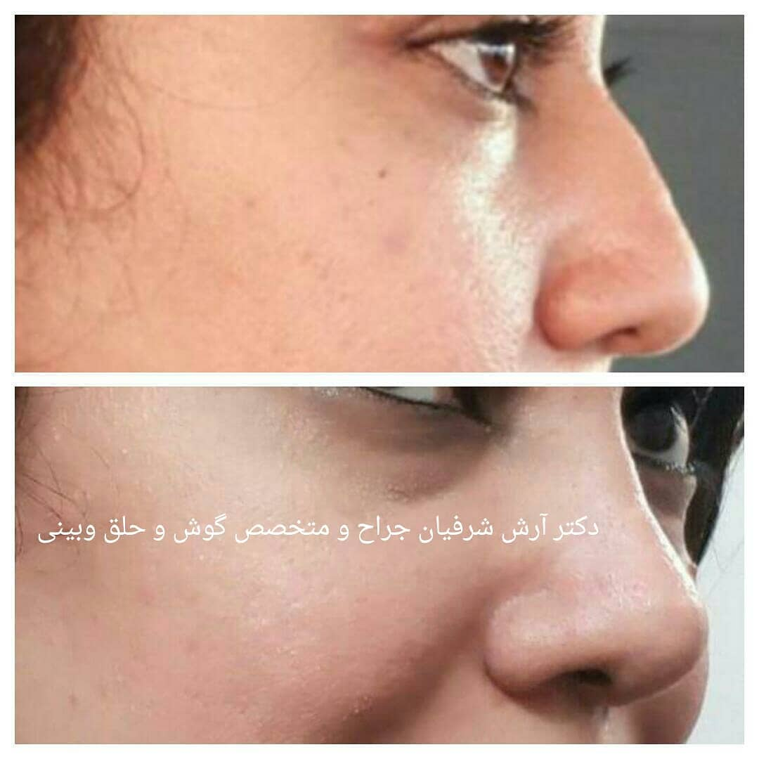 Meaty nose surgery